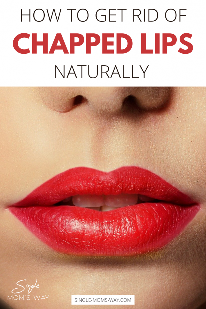 How To Naturally Get Rid Of Chapped Lips?