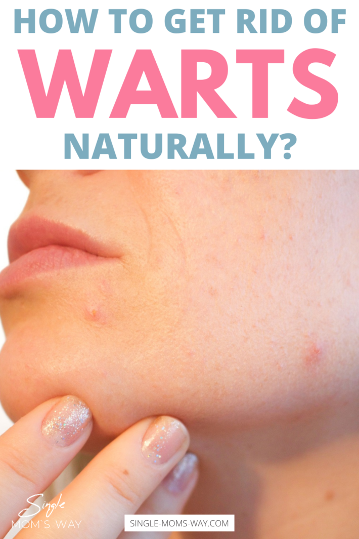How To Get Rid Of Warts Naturally?